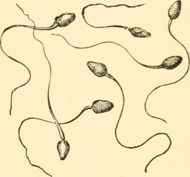 An old medical drawing shows 7 individual sperm overlapping one another.