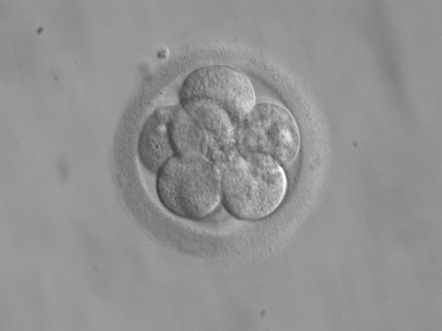 Microscopic close-up of an eight-cell embryo.