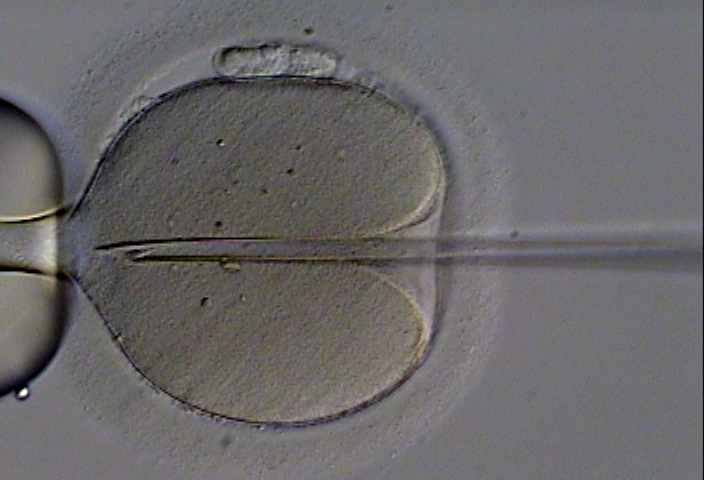 Microscopic image of in vitro fertilization procedure in which a single sperm is injected directly into an egg
