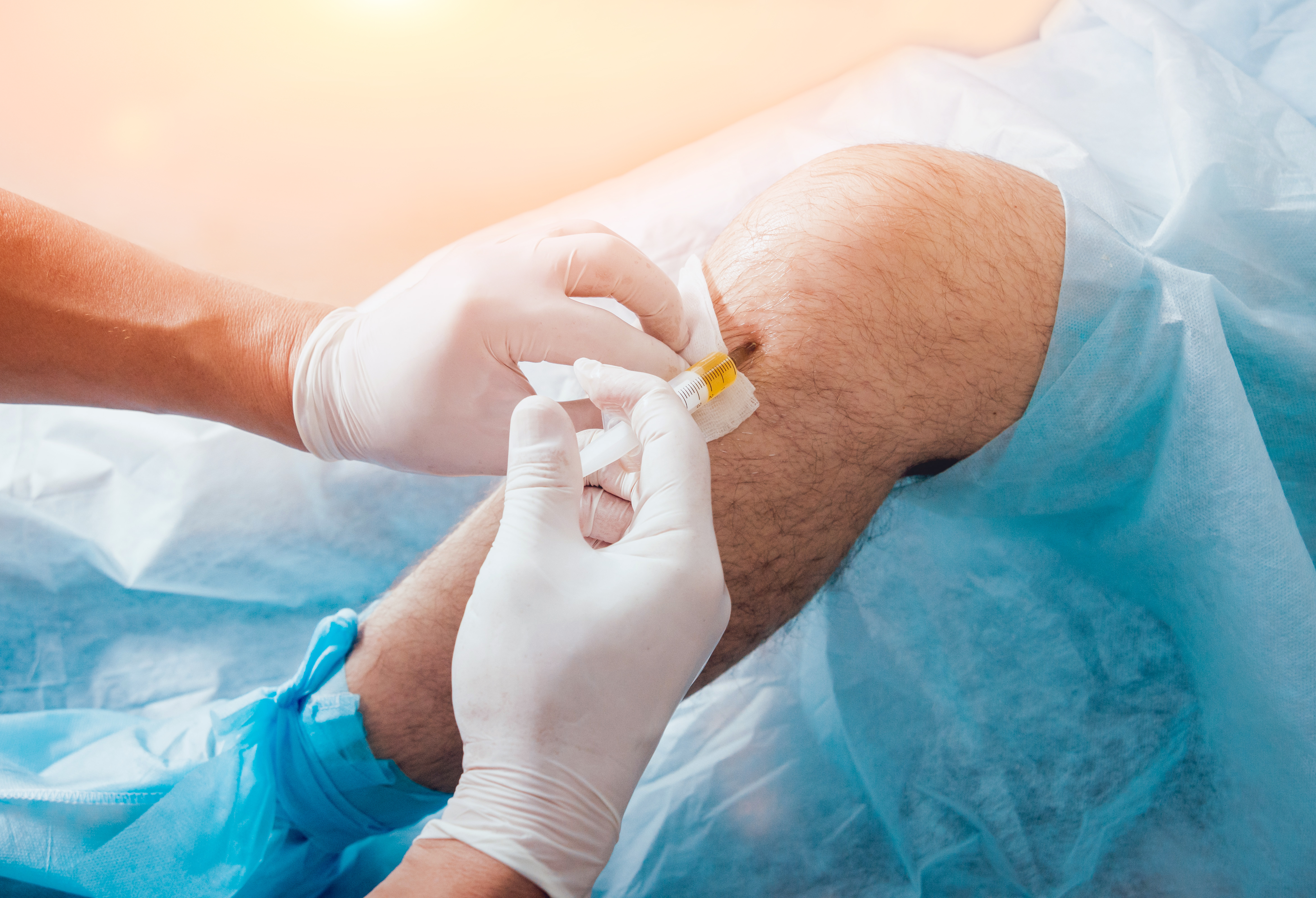 Gloved hands injects stems cells into a knee draped in blue medical sheeting