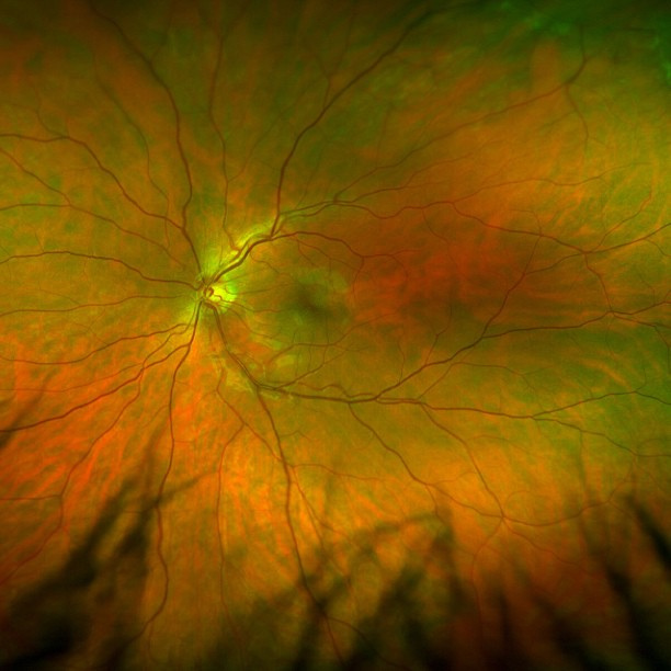 Close-up of an eye retina.
