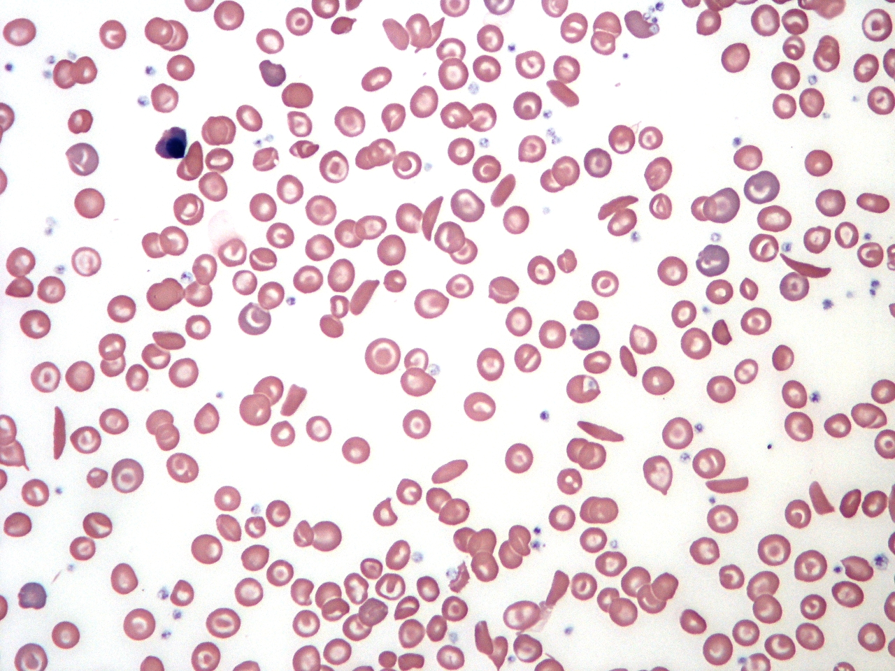 Sickle cell anemia blood under microscope