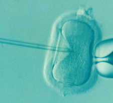 Turquoise microscopic image of human egg being injected with sperm with long needle in vitro