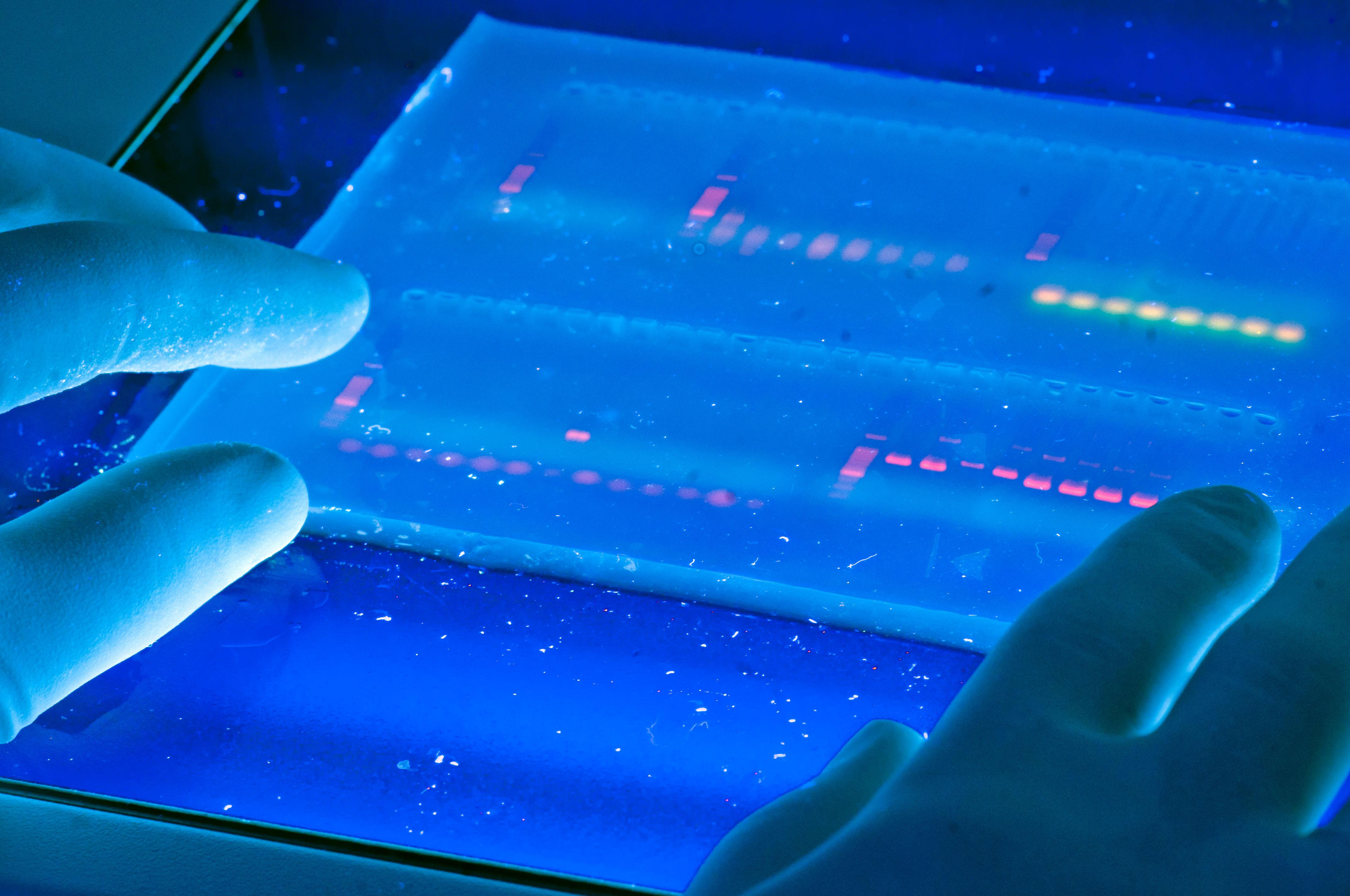 Gel DNA plate with UV illumination