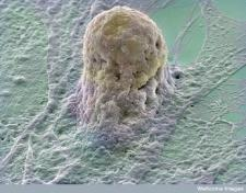 An embryonic stem cell