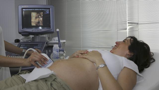 A pregnant woman lays with her stomach exposed on a hospital bed, and looks over to her side viewing a sonogram machine which displays a fetus.