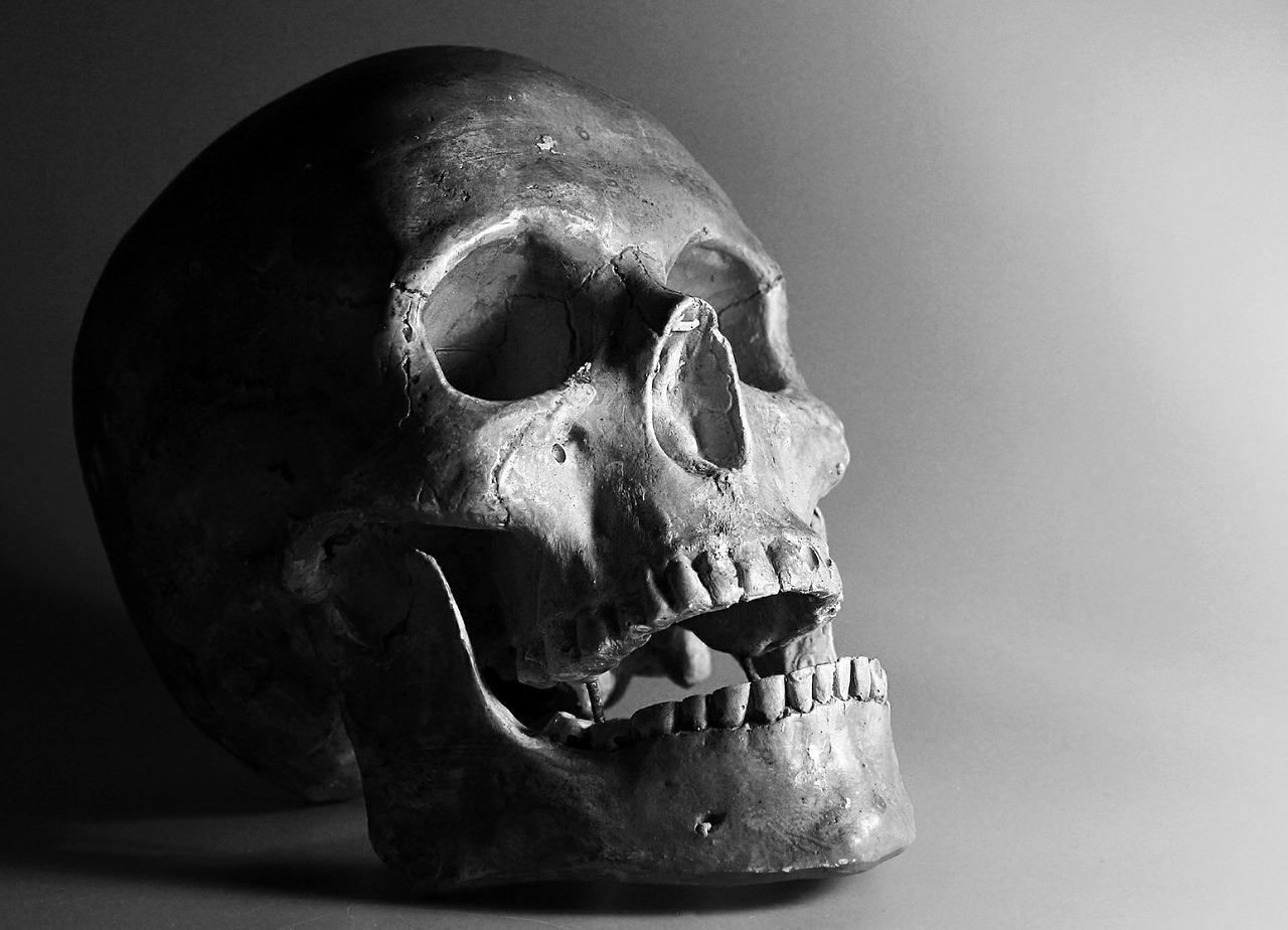 Black and white photo of human skull.